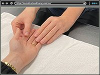 Innovative Hand Therapy and Scar Management